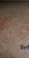 psoriasis-before psoriasis holistic approach.
