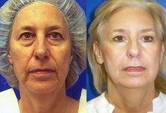 before-after-face-lift